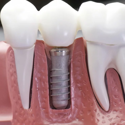 Implant zamiast zęba